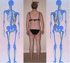 Balancing the body, reducing scar tissue, myofascial release