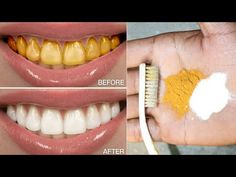 How to whiten your teeth at home in just 3 minutes. Ingredients for this remedy : -turmeric powder -Colgate and -Lemon or Lemon juice -Cloves -salt *********. Teeth Whitening Remedies, Natural Teeth Whitening, Natural Health Remedies, Home Remedies, Teeth Health, Healthy Teeth, Teeth Care, White Teeth, Teeth Cleaning