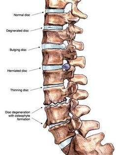 What is Degenerative Disc Disease? - Degenerative disc disease is one of the… joint pain relief physical therapy Inversion Therapy, Inversion Table, Degenerative Disc Disease, Spine Health, Low Back Pain, Natural Treatments, Physical Therapy, Physical Pain, Chronic Pain
