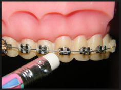 Broken or poking archwire: Using a pencil eraser, push the poking wire down or place wax on it to alleviate the discomfort. If you can't move the wire, place a piece of soft wax over any area that is irritating to the cheek or gum tissue. Braces Problems, Dental Braces, Emergency Care, Pencil Eraser, Orthodontics, Wax, Finding Yourself, Beaded Bracelets, Things To Come
