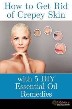 Skin Care Remedies - Crepey Skin Remedies - How To Get Rid Of Crepey Skin With 5 DIY Essential Oil Remedies. Are essential oils effective? Latest skin technology reveals More! Top Skin Care Products, Skin Care Tips, Skin Tips, Beauty Products, Skin Secrets, Facial Products, Anti Aging Skin Care, Natural Skin Care, Natural Beauty