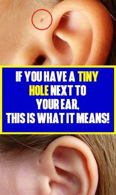 If you're among these people who have a tiny hole next to your ear, you're in the very few in the world. Healthy Habits, Healthy Tips, Healthy Foods, Garlic Health, Turmeric Drink, Gap Teeth, How To Grow Eyelashes, Everything Is Possible, How To Get Rid Of Acne