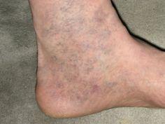 Почти каждый из нас знает, что такое варикоз. Эти «паучьи» сетки появляются на ногах, на руках, а иногда и там, где им быть вообще не следовало. Однако победное средство над варикозом есть дома у каж…