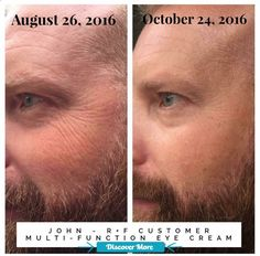 Wow! Check out Johns results using Rodan  Fields multi-function eye cream! I never get tired of seeing these before and after transformations! Want to give it a try? Id love to post your before and after picture! Message me for more information #fitnessbeforeandafterpictures, #weightlossbeforeandafterpictures, #beforeandafterweightlosspictures, #fitnessbeforeandafterpics, #weightlossbeforeandafterpics, #beforeandafterweightlosspics, #fitnessbeforeandafter, #weightlossbeforeandafter, #b...