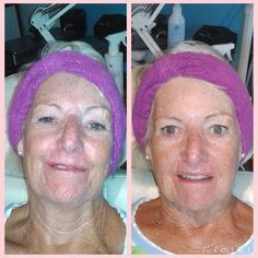 Before and after result from one treatment with the Ageloc Galvanic Spa machine. Amazing technology that literally wipes years from your face in one short session. Galvanic Body Spa, Ageloc Galvanic Spa, Nu Skin, Skin Care, Technology, Amazing, Pretty, Home, Fur