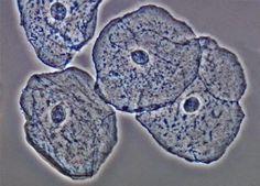 PRÁCTICA DE LABORATORIO:   Tinción y observación de células bucales.     1. Materiales y reactivos.       Los materiales que utilizamos f...