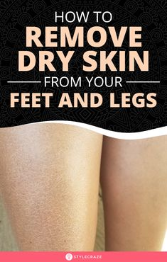 How To Remove Dry Skin From Your Feet And Legs: Is the dry, flaky skin on your feet and legs irritating you? Then, come aboard and resolve this skin issue with the remedies in this article. Dry Skin On Feet, Dry Flaky Skin, Dry Skin Remedies, Natural Remedies, Dry Brushing, Skin Care Tips, Healthy Skin, Legs, Skincare
