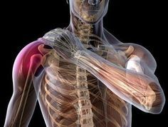 Shoulder Pain Exercise Relief | Rotator Cuff Tendonitis Exercises