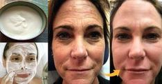 Thousands of Women Are Using This Homemade Cream to Rejuvenate Their Facial Skin and Get Rid of Wrinkles! You Will Look 10 Years Younger Overnight (RECIPE) Lemon Juice Face, Lemon Face, Wrinkle Remedies, Baking Soda And Lemon, Les Rides, Face Skin Care, Turkish Recipes, Beauty Recipe, Tips Belleza