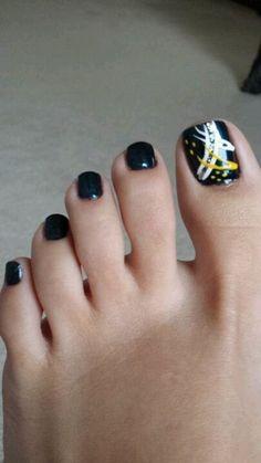 Uñas de pies negras.