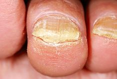 Remedies For Toenail Fungus Antifungal Essential Oils for Toe Fungus - Certain botanicals shine against fungi - killing them and preventing recurrence. Learn about the best anti-fungal essential oils and how to use them. Toe Fungus, Toenail Fungus Remedies, Toenail Fungus Treatment, Nail Treatment, Uses For Listerine, Long Nails, Home Remedies, Herbs, Fungi