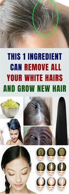 DIY Hair Growth Stimulating Leave-In Conditioner Leave-in conditioner is a must-have hair care product in your beauty bag. It really helps your hair by locking in moisture as well as adding softness and shine. Grey Hair Remedies, Natural Remedies, Leave In, Tips Belleza, Hair Health, About Hair, Grow Hair, Diy Hairstyles, Hair Loss