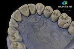 Dental Anatomy, Dental Technician, Dental Laboratory, Dental Art, Dentistry, Whitening, Health And Beauty, Cool Tattoos, Teeth