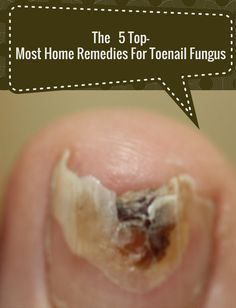 The 5 Top-Most Home Remedies For Toenail Fungus | Remedies Corner