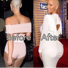 Nigerian Girls, Plastic Surgery Photos, Kanye West, Celebrity Plastic Surgery, Celebrities Before And After, Rhinoplasty, Photoshop, Celebs, Beauty