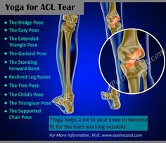 Yoga for ACL Tear Read: http://www.epainassist.com/sports-injuries/knee-injuries/acl-tear-exercises