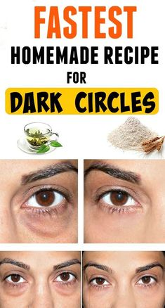 Today we would like to share with you a great remedy for dark circles and bags under your eyes. It is a very simple recipe, with ingredients found in every kitchen. of rice flour -cold, green tea. Dark Circles Under Eyes, Dark Under Eye, Dark Circle Cream, Dark Circle Remedies, Beauty Hacks For Teens, Anti Ride, Under Eye Bags, Puffy Eyes, Dark Eyes