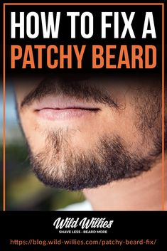 A patchy beard is the bane of every type of beard, but luckily it's something you can fix. Patchy Beard Tips Grow A Thicker Beard, Thin Beard, Bald With Beard, Grow A Beard, Bald Men With Beards, No Beard, Full Beard, Long Beards, Beard Growing Tips