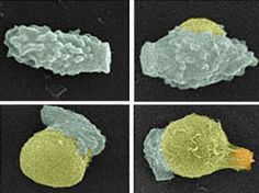The fungus Cryptococcus causes meningitis, a brain disease that kills about 1 million people each year. It's difficult to treat because fungi are genetically quite similar to humans, so compounds that affect fungi tend to have toxic side effects for patients. Now, researchers have identified 18 proteins that play a role in spore formation and germination. The findings raises the possibility of preventing the disease by blocking the spores' germination.