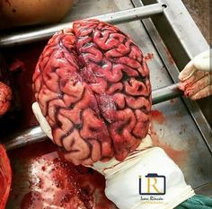 Body Organs Diagram, Agree To Disagree, Wine Mom, Medical Illustration, Anatomy Reference, Medical School, Nursing Students, Greys Anatomy, Human Body