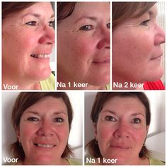 Result of lifting intense skin product. Before and after 30 minutes !  wwww.dlifeglobal.com/sh85377688/product/info