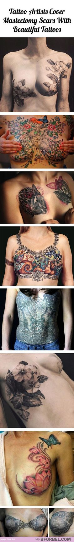 Tattoo artists cover mastectomy scars with beautiful tattoos