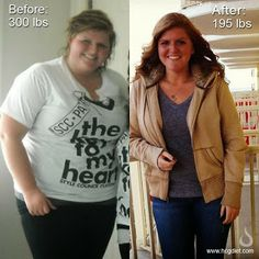 Best HCG before and after pictures from 2013