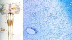 Left: diagram from a medical text showing how MS affects the myelin sheathing of nerves. Right: ...