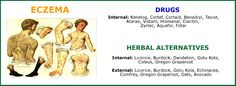 Herbal Alternatives For Eczema How To Treat Eczema, Continue Reading, Drugs, Herbalism, Alternative, Skin Care, Memes, Meme