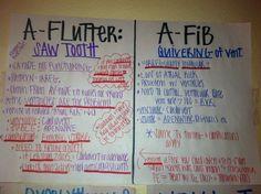 A-Flutter vs A-Fib