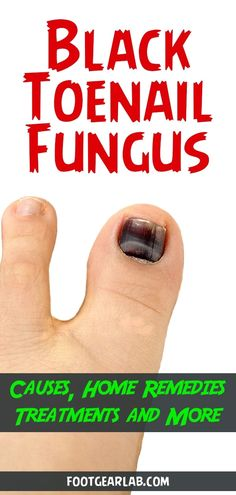 Wondering if you have black toenail fungus? In this case, you have to … – FOOT Wondering if you have black toenail fungus? In this case, you have to … Wondering if you have black toenail fungus? In this case, you have to … Toenail Fungus Causes, Toe Fungus Remedies, Black Toenail Fungus, Fingernail Fungus, Fungus Toenails, Black Toenail Treatment, Best Toenail Fungus Treatment, Black Toe Nails, French Tip Acrylic Nails