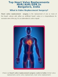 #Heart_valve_replacement _surgery is the replacement of one or more of the heart valves with either an artificial heart valve or a #bioprosthesis for example valve of the pig. It is an alternative to valve repair.