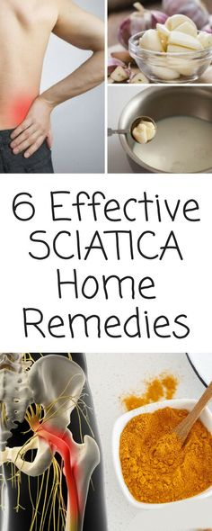 6 Effective Home Remedies for Sciatica That You Can Try