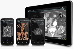 ResolutionMD Android App Cleared by FDA for Diagnostic Imaging (w/video)