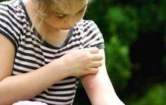 Repellente per le zanzare fatto in casa (biologico)