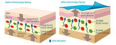 kinezyobantlamanın deri üzerine etkisi - Google'da Ara