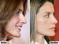 Letizia Ortiz - plastic surgery - Another! Botox Results, Plastic Surgery Pictures, Botox Lips, Plastic Surgery Gone Wrong, Nose Surgery, Celebrity Plastic Surgery, Cosmetic Procedures, Queen Letizia, Queen Rania