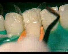 Nadogradnja zuba belom plombom (video) – STOMATOLOG