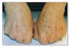 Коричневые пятнышки на руках? Попробуй это средство! После 40 лет у многих людей появляются пигментные пятнышки на коже: с размытыми краями, коричнев... - Добрые Советы - Google+