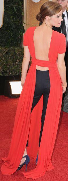 Emma Watson Is Making Dresses Over Pants Happen