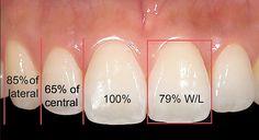 Красотата е в пропорциите, симетрията, формата и цвета на зъбите! Познаването на законите на естетиката дава възможност за претворяване й.
