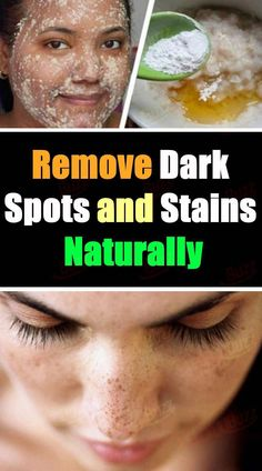 Ways to get Rid Of Brown Spots on Facial area - How to get rid of dark spots on face - Sun Spots On Skin, Black Spots On Face, Brown Spots On Hands, Age Spots On Face, Spots On Legs, Dark Spots, Getting Rid Of Freckles, Sunspots On Face, Spots On Forehead