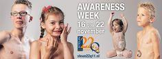 DELEN MAG, graag zelfs. Awareness week NL voor het #22Q11 deletie syndroom 16 t/m 22-11. Help mee de bekendheid te vergroten.