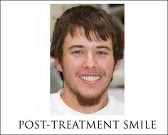 Relief from pain and embarrassment with dental implant treatment    http://dentalimplants-usa.com/patients/gallery/10674basicgallery.html