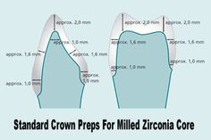 Zirconium Crowns.  West Chester dental Arts 403 N. Five Points Road West Chester, PA 19380 (610)696-3371