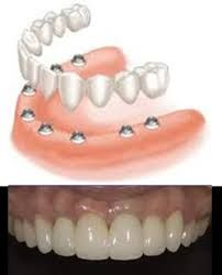 Teeth ought to last you your entire life, so it's important to manage them. Oral health is not that difficult to attain. Tooth Decay Treatment, Dental Bridge Cost, Dental Laboratory, Teeth Care, Cosmetic Dentistry, Oral Health, Cavities, Dental Care, Smile