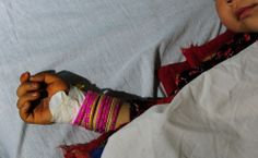 A five year old Afghan girl, allegedly raped by a 22 year old man, lies in a hospital bed in Kaldar district of Balk Province of Mazar-i-Sharif. The rapist was detained by police. There is little sign that violence against women in Afghanistan is decreasing. 87% of women have experience physical, sexual or psychological violence and/or forced marriage.