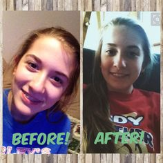 This is Audy Maschino when she has her braces and after!!! She's my best friend! Hope you can tell the difference!! @autumnmaschino