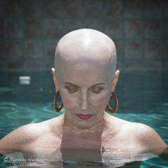 bald women who have cancer photo gallery | As for my time being bald, my friend and pathologist, Dr. David ...