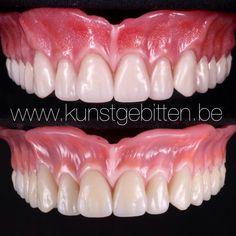 Dental Anatomy, Medical Anatomy, Dental Total, Cosmetic Dentistry Procedures, Dental Technician, Perfect Teeth, Dental Laboratory, Dental Art, Dental Implants